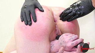 babe gets anal brutal punishment nurse with a huge strap-on